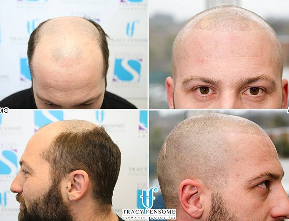 Scalp Micropigmentation course at Signature Academy