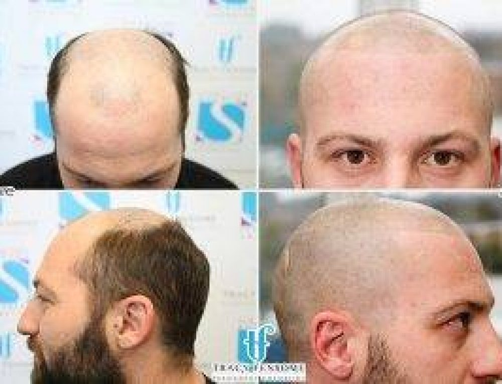 Scalp Micropigmentation Course with the Finest Natural Effects