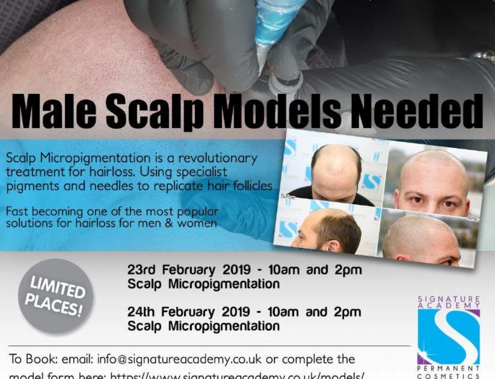 Male Hair Loss Models for Scalp Micropigmentation Needed 2019